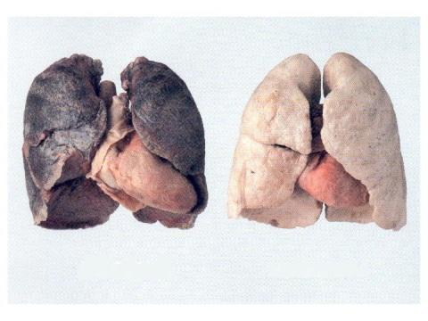 polmoni DANNEGGIATI E NON