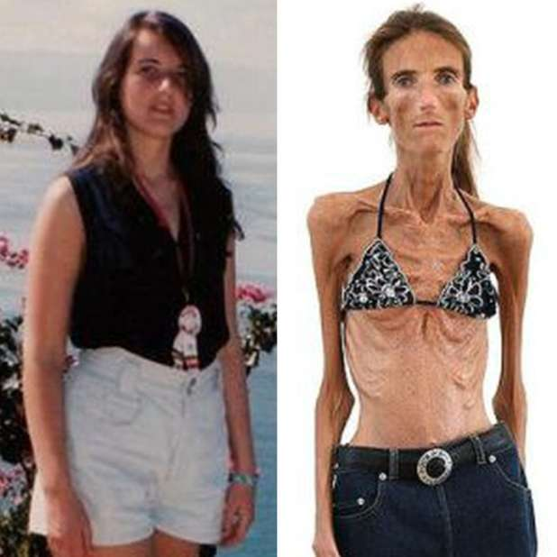 20130116_valeria-anoressia